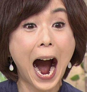 「大下容子 銀歯」の画像検索結果